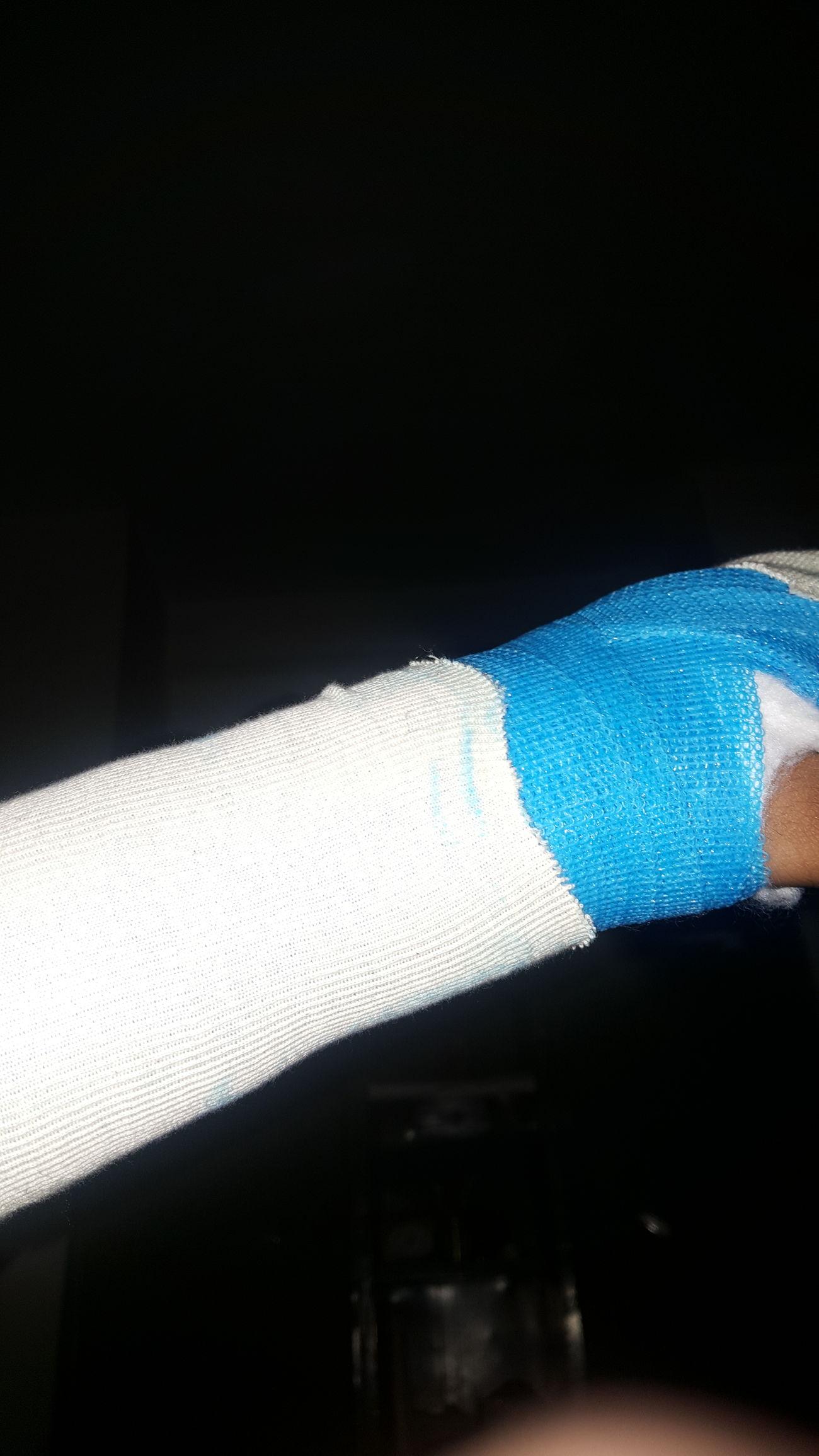 Got injured 😣😣 Shadow Close-up Indoors  No People Day Plaster Broken Bone wrist First Eyeem Photo