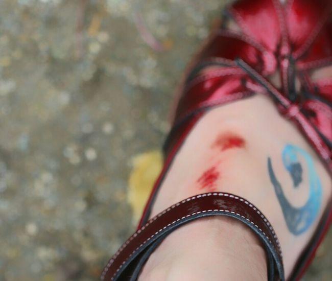 睡蓮を撮ってて穴に落ち負傷w いつもこんな調子 Instep Injury That's Me Self Shot