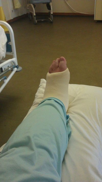 Personal Perspective Human Foot Hospital Broken Leg Leg In Plaster Bed Resting