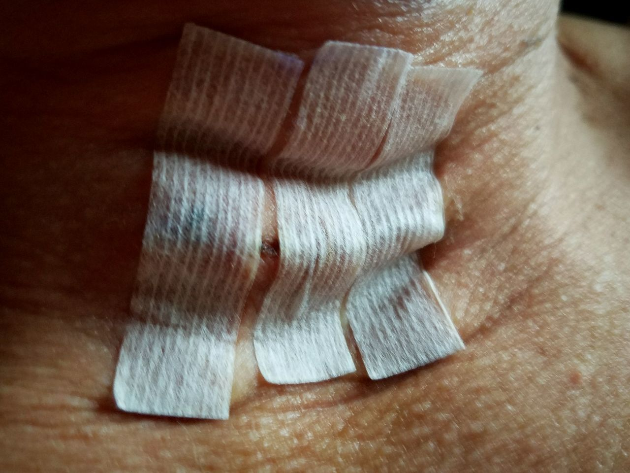 Post Parathyroidectomy Bandage Parathyroid Parathyroidectomy Surgery Medicine Health Care Post Surgery  Neck Wound Steri Strips Future Scar Canman Show Studio Iowa Cedar Rapids